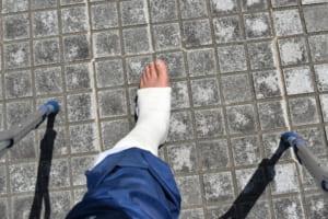 脛骨骨折・腓骨骨折の後遺症|回復へのリハビリや治療費・慰謝料などの示談金は!?