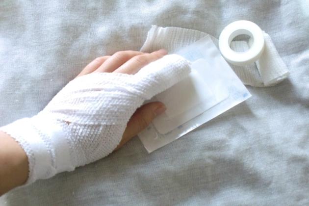 指切断の後遺症|手と足で事故の慰謝料・保険金は同じ?労災の後遺症等級は?