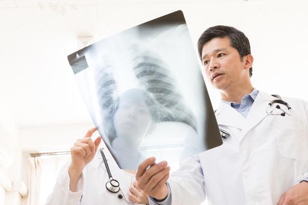 脊髄損傷の後遺症認定や級認|交通事故の慰謝料相場を弁護士が解説